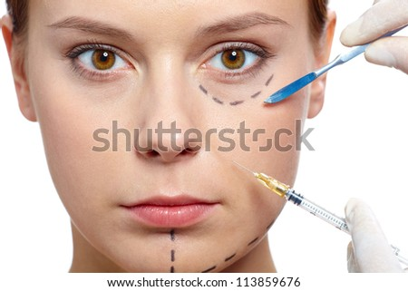 Fresh woman with marks drawn on face during botox procedure - stock photo
