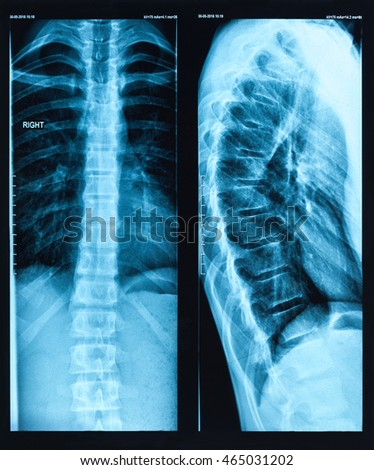 Front and side x-ray picture of the damaged human spine.