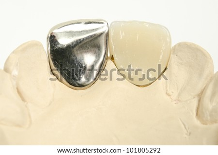 front crowns, left cheap version, right costly aesthetics - stock photo