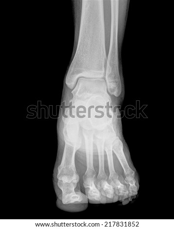 Front view of foots on x-ray film