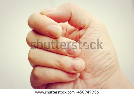 Fungus Infection on Nails Hand, Finger with onychomycosis. - soft focus,  - stock photo