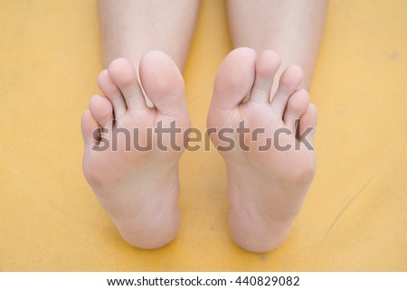 Fungus infection on nails of woman's foot - stock photo