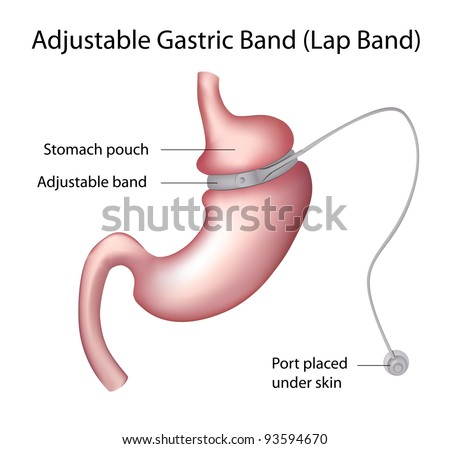 Gastric Band Weight Loss Surgery - stock photo