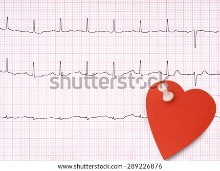Genuine ECG, electrocardiogram background with heart shape note, blank for your health message. - stock photo