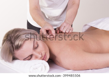 Girl gets acupuncture - stock photo
