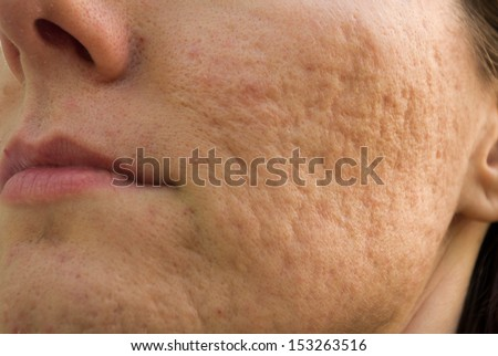 Girl with problematic skin and acne scars - stock photo