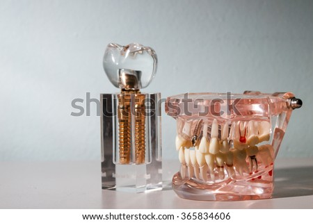 glass jaw model with implanted dentures - stock photo