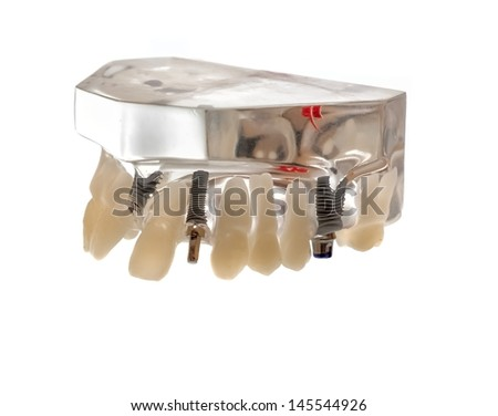 glass jaw model with implanted teeth - stock photo