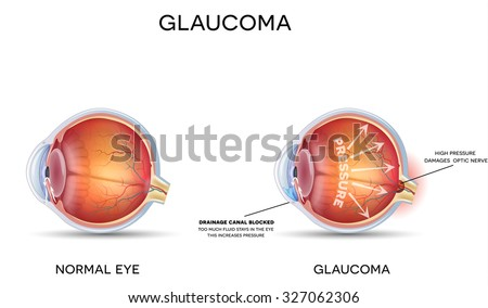 Glaucoma and healthy eye detailed structure