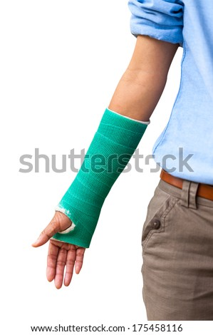 Green cast on an arm isolated. - stock photo