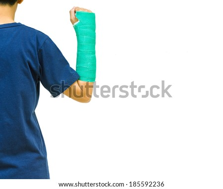 green cast on hand and arm on white background. - stock photo