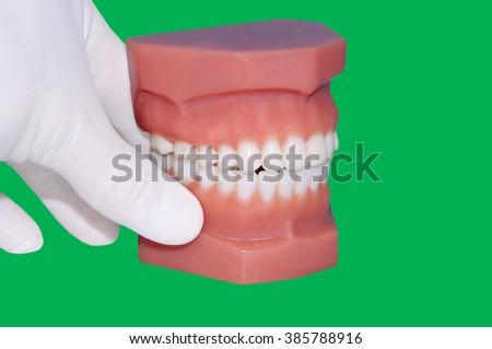 Green Screen/ Chroma key: dentist hand show  model of teeth - stock photo