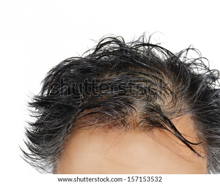 grey hair and balding closeup of head. white background