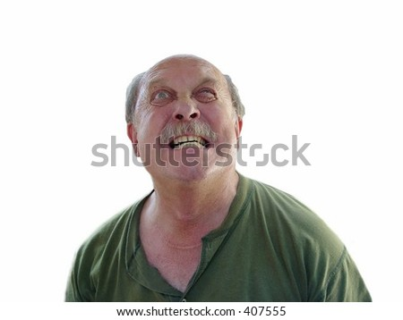Grouchy old man with thyroidectomy scar - stock photo