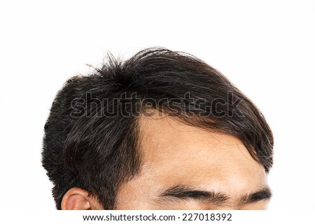 Hair loss , Male head with hair loss symptoms front side. - stock photo