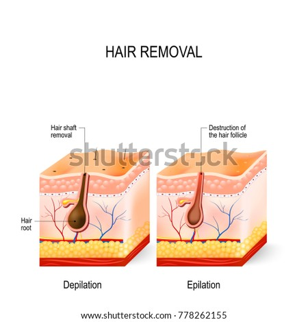 Hair removal difference between epilation depilation stock hair removal difference between epilation depilation stock illustration 778262155 shutterstock ccuart