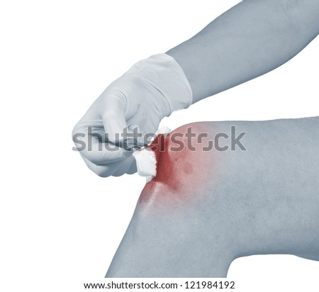 Hand disinfecting wound on knee. Pain concept photo.