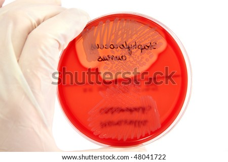 Hand in glove holding Petri plate with bacteria Staphylococcus Aureus, Moraxella Catarrhalis isolated over white background - stock photo
