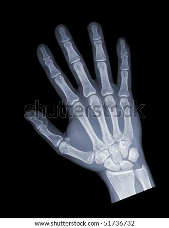 hand of a young female patient isolated - stock photo