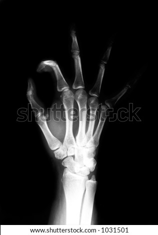hand skeleton of a hand making a OK sign
