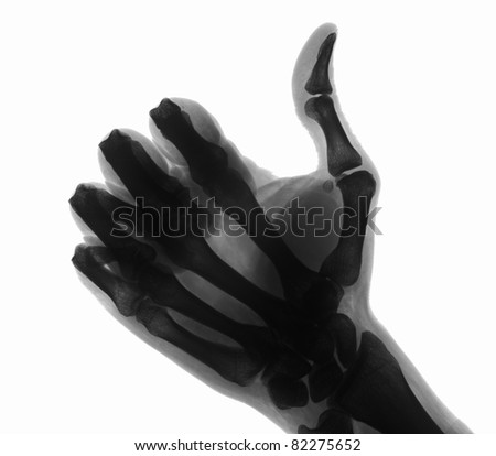 Hand under x-ray - stock photo