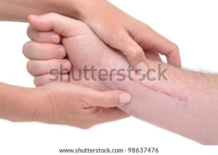 hands massaging a arm with scar - stock photo