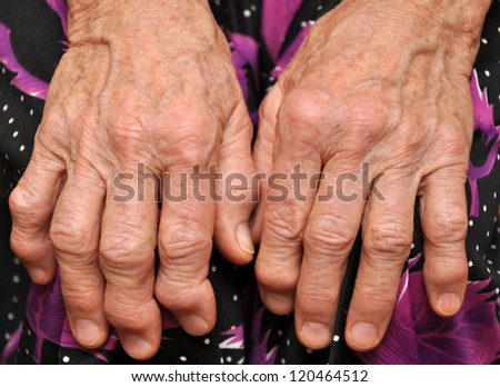 Hands of an old woman close-up - stock photo