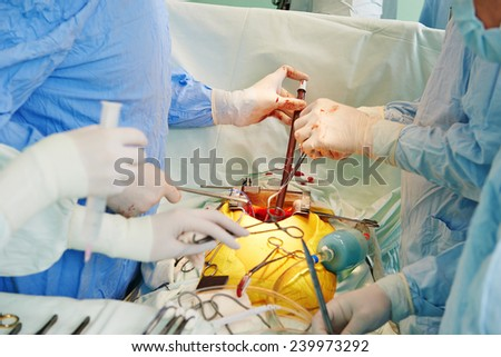 hands of surgeons in uniform perform heart transplantation operation on a patient at cardiac surgery clinic - stock photo