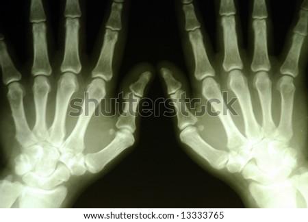 hands roentgenogram - stock photo