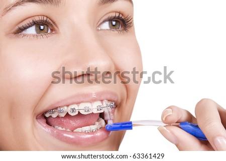 happy girl with braces brushing her teeth - stock photo