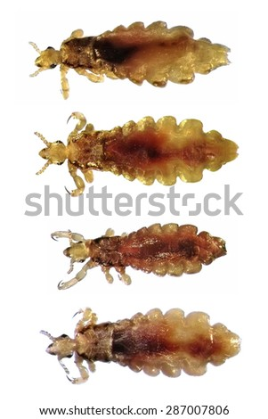 Head lice (louse) isolated on a white background - stock photo