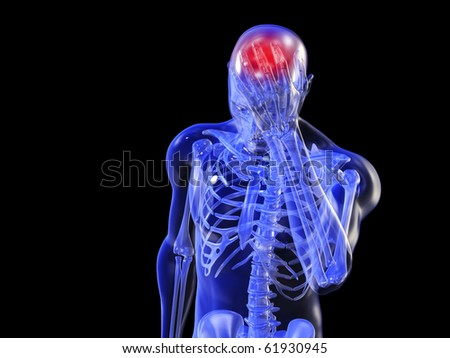 Headache Front View - stock photo