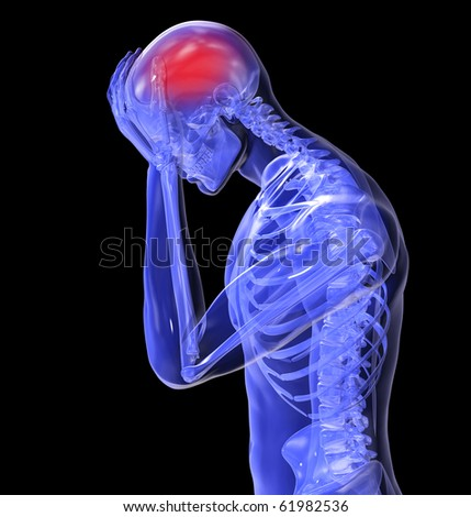 Headache Left View - stock photo