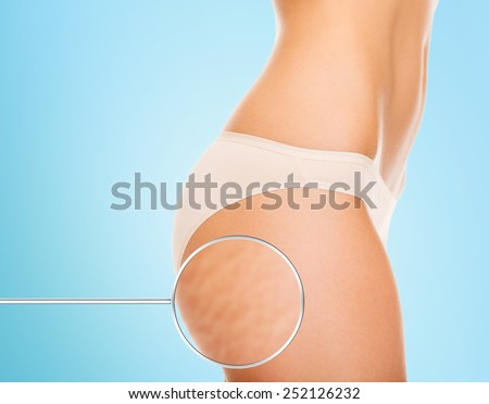 health, people, bodycare and beauty concept - close up of woman buttocks with cellulite and magnifier over blue background - stock photo