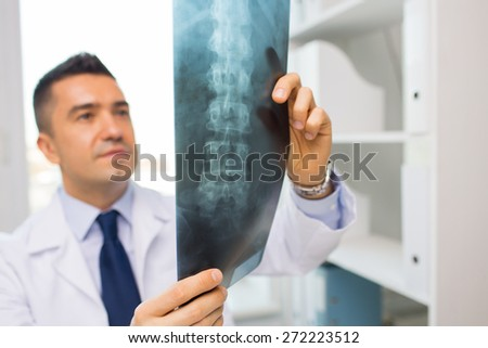 healthcare, rontgen, people and medicine concept - close up of male doctor in white coat looking at x-ray in hospital - stock photo