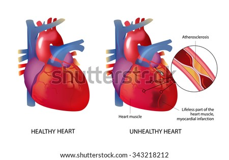 Healthy unhealthy heart on white background stock illustration healthy and unhealthy heart on a white background ccuart Choice Image