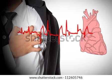 Heart Attack and heart beats cardiogram