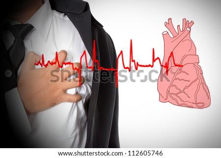 Heart Attack and heart beats cardiogram - stock photo