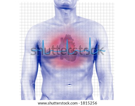 Heart Attack - isolated digital composition- isolated digital composition - stock photo