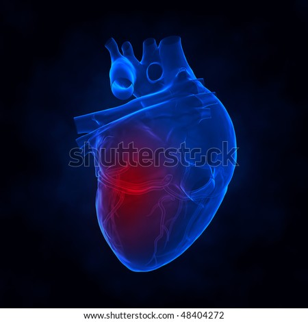 Heart attack xray view - stock photo