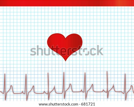 heartbeat diagram electrocardiogram  electrocardiograph - stock photo