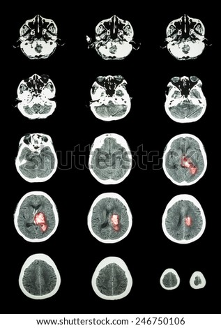 Hemorrhagic Stroke .  CT scan (computed tomography) of brain ( cerebrovascular system )  :  Intracerebral hemorrhage at left cerebral hemisphere - stock photo