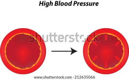 High Blood Pressure - stock photo