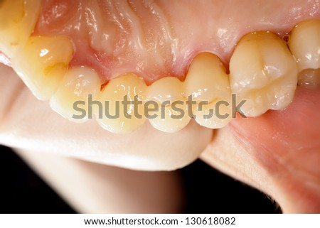Highly aesthetic emax pressed ceramic bridge / crown in mouth.