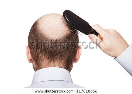 Human alopecia or hair loss - adult man hand holding comb on bald head
