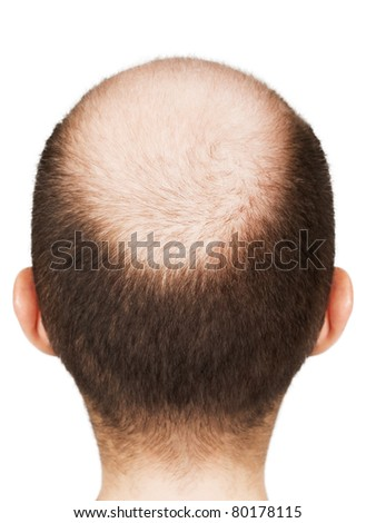 Human alopecia or hair loss - adult men bald head - stock photo