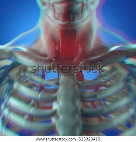 Human Anatomy Throat Cancer Disease 3 D Stock Illustration 523320415 ...