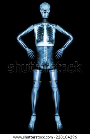 Human bone stand and akimbo (X-ray whole body : head skull neck spine shoulder arm elbow forearm wrist hand finger chest thorax heart lung abdomen back vertebra pelvis hip thigh knee leg ankle foot ) - stock photo