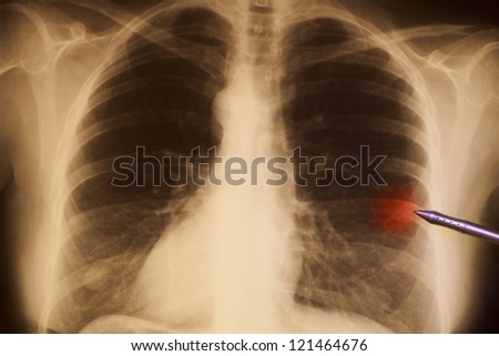 Human chest X-ray, illuminated by a light-box - stock photo
