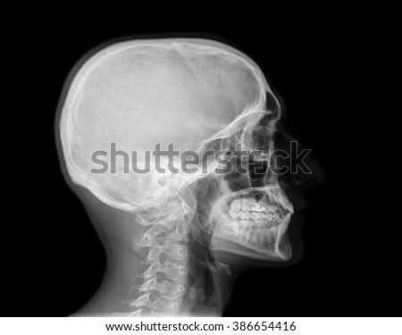 Human cranium on roentgenogram side view isolated on black